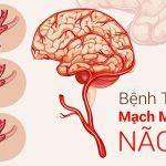 Tai biến mạch máu não là gì? Tìm hiểu ngay nguyên nhân và cách sơ cứu